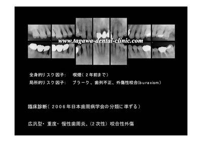 ISCT2013072607.jpg
