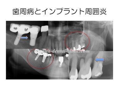 periodontitis_periimplantitis.jpgのサムネール画像